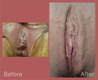 LVR With Labiaplasty-003