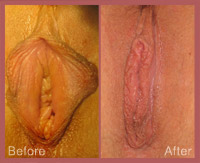 LVR With Labiaplasty-008